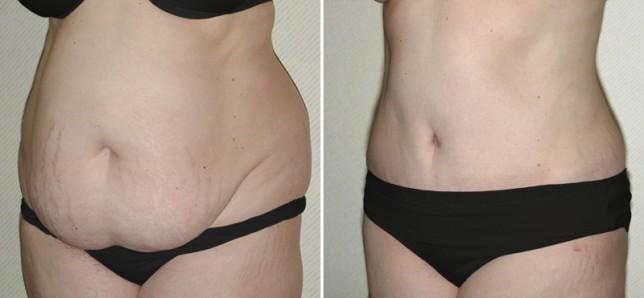 abdominoplastia pelo sus antes e depois