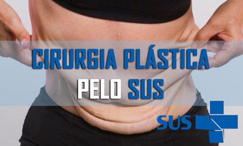 Cirurgia plástica grátis pelo SUS