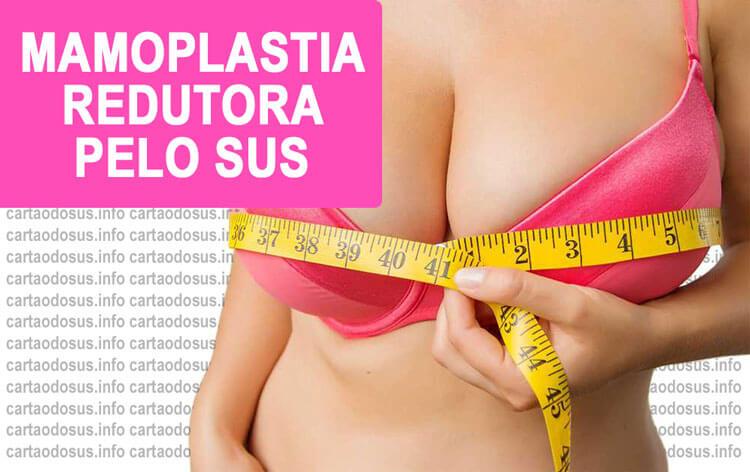 c42987070 Como conseguir Mamoplastia Redutora pelo SUS 2019 ➜  Veja AQUI