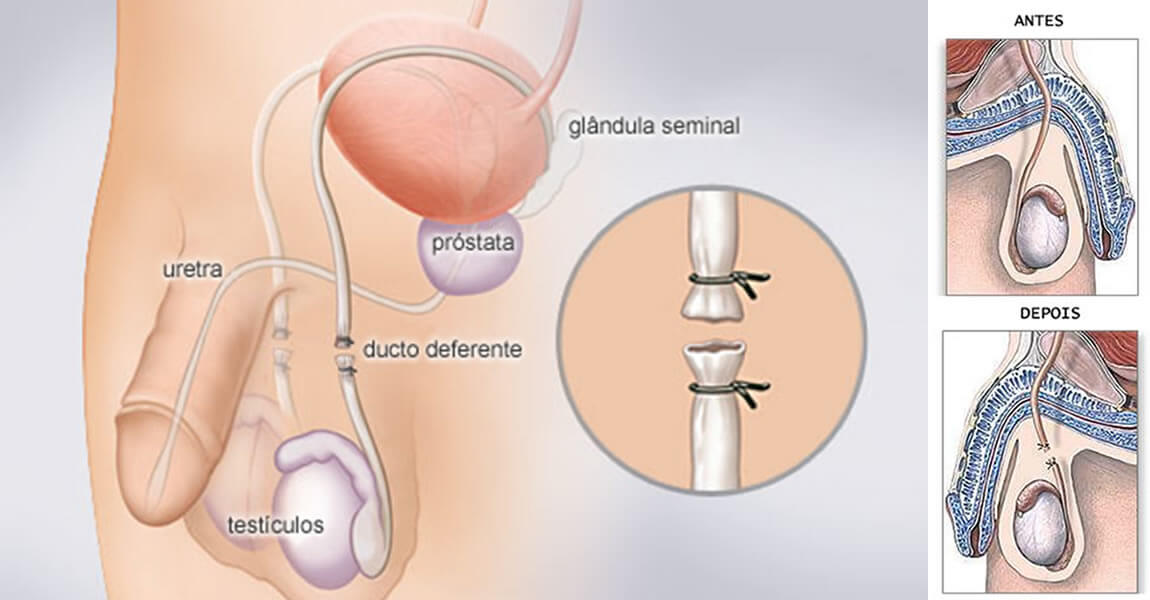 cirurgia de vasectomia pelo SUS