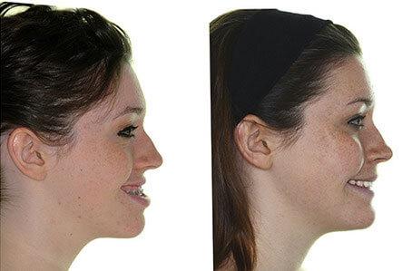 cirurgia ortognatica antes e depois