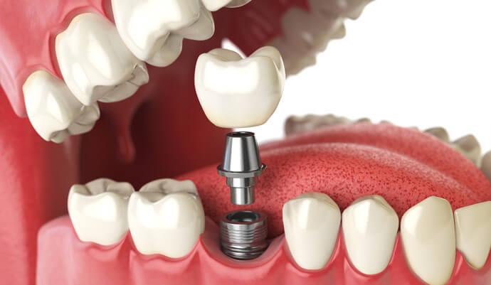 Dentista gratuito pelo sus