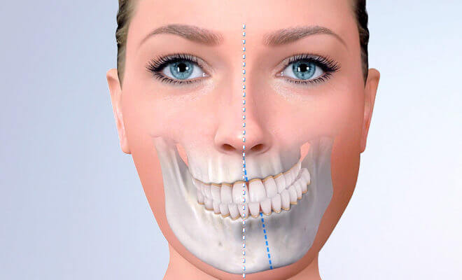 bucomaxilo cirurgia