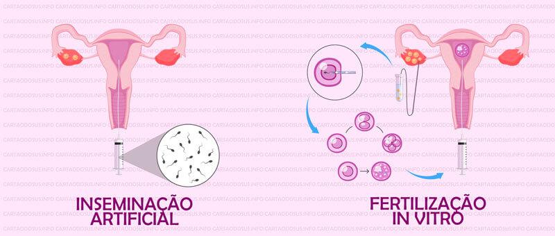 fertilização in vitro pelo sus