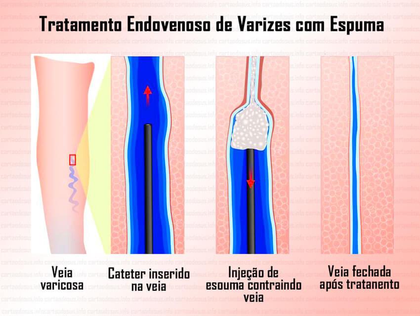 cirurgia de varizes pelo sus