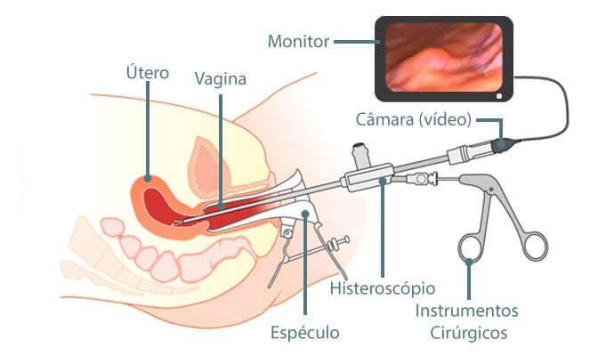 como e onde fazer histeroscopia pelo SUS