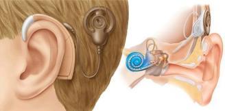 como funciona o implante coclear